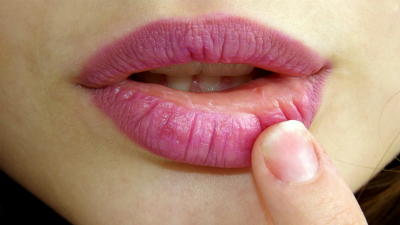 Lovely lips with essential oils-